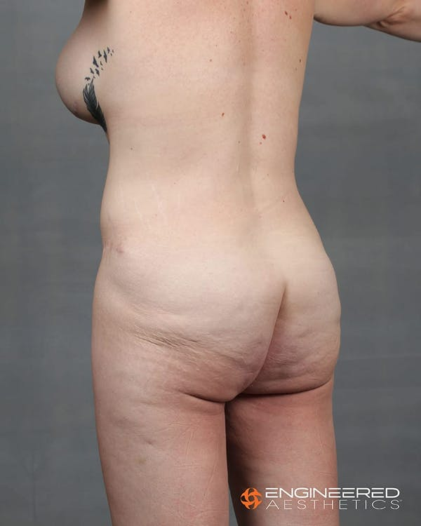 Gluteal Lift Gallery - Patient 2772491 - Image 3