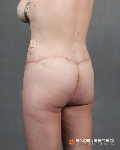 Gluteal Lift Gallery - Patient 2772491 - Image 4