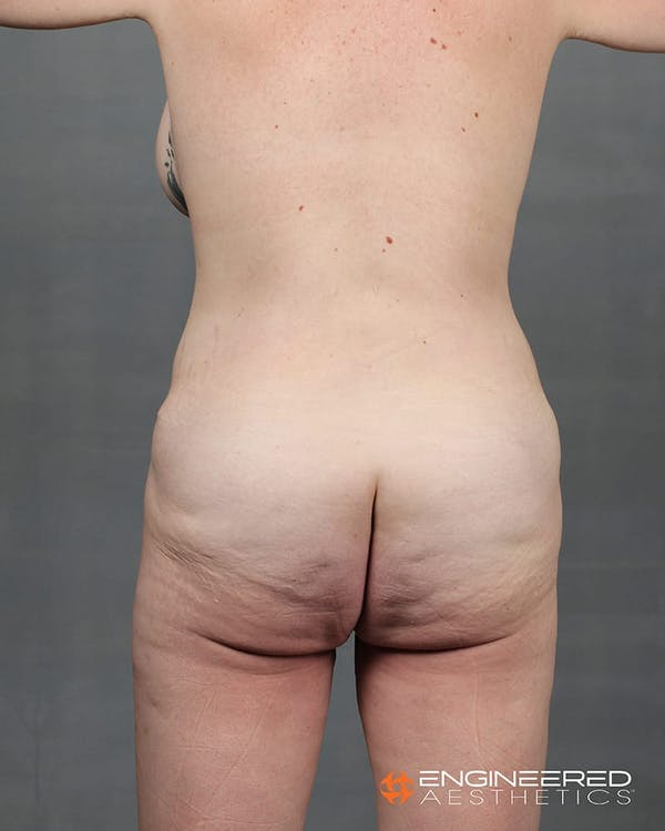 Gluteal Lift Gallery - Patient 2772491 - Image 5