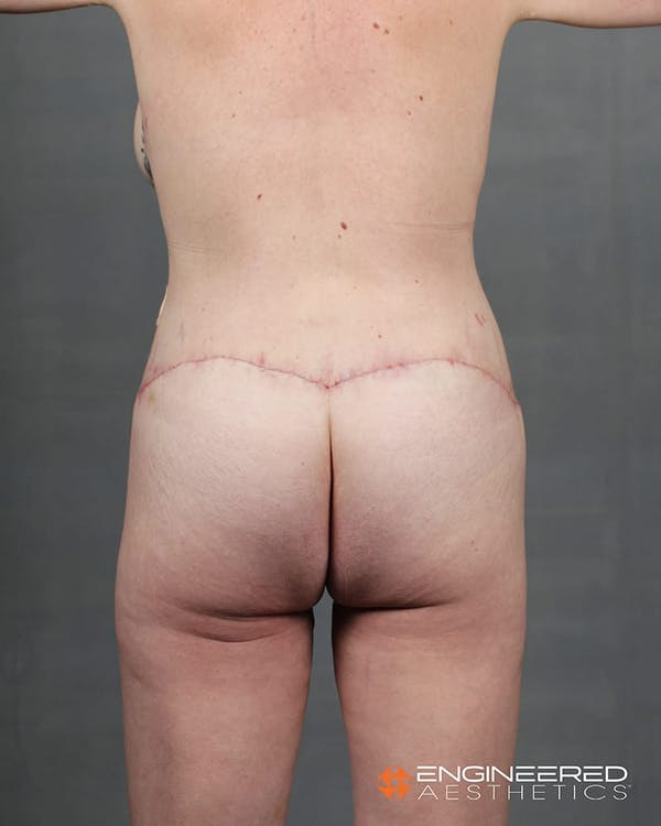 Gluteal Lift Gallery - Patient 2772491 - Image 6