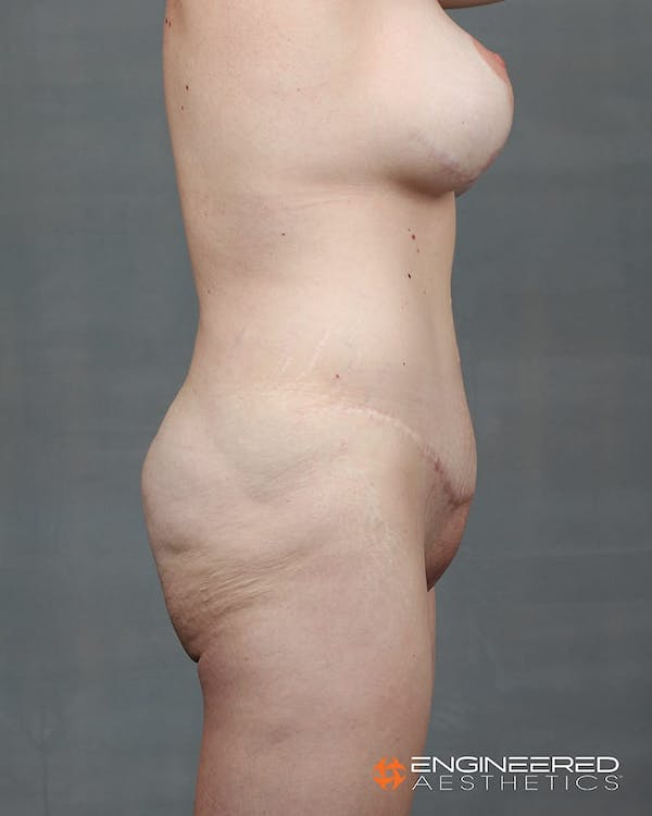 Gluteal Lift Gallery - Patient 2772491 - Image 7