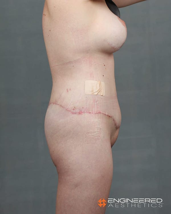 Gluteal Lift Gallery - Patient 2772491 - Image 8