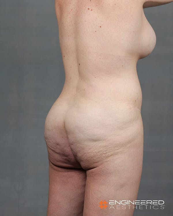 Gluteal Lift Gallery - Patient 2772491 - Image 9