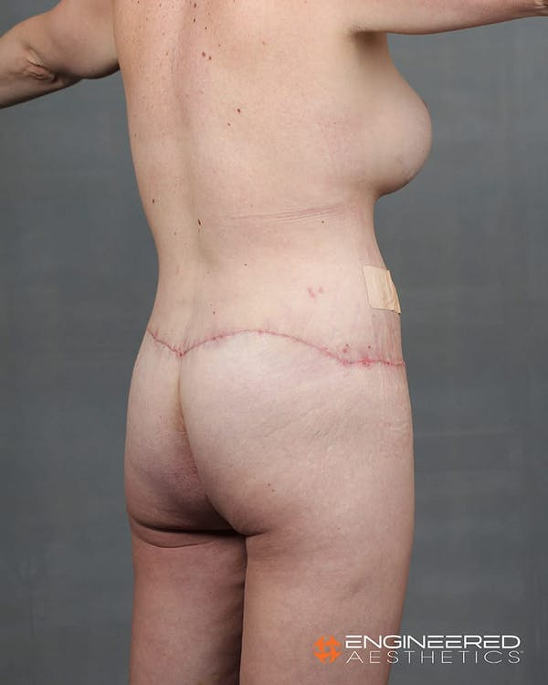 Gluteal Lift Gallery - Patient 2772491 - Image 10