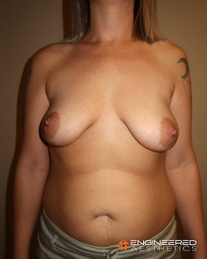 Before and After photo of a Las Vegas breast lift patient