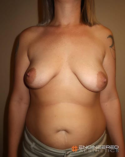 Mastopexy Augmentation Gallery - Patient 2772561 - Image 1