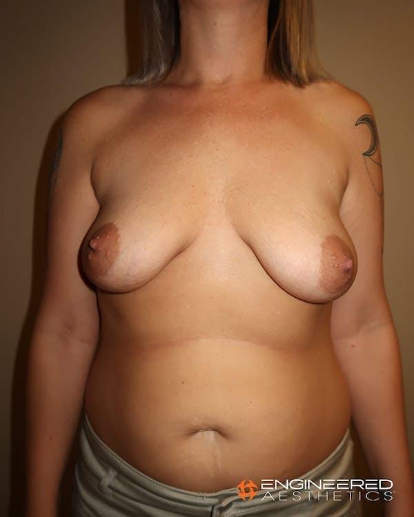 Mastopexy Augmentation Gallery - Patient 2772561 - Image 1