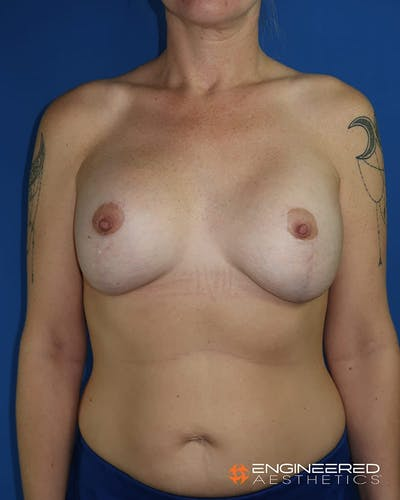 Mastopexy Augmentation Gallery - Patient 2772561 - Image 2