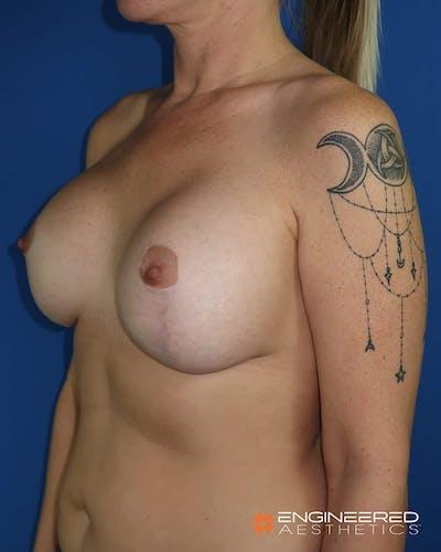 Mastopexy Augmentation Gallery - Patient 2772561 - Image 6