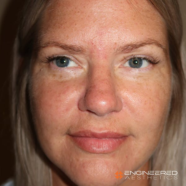 Rhinoplasty Gallery - Patient 4545370 - Image 1