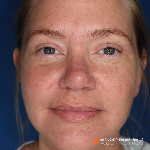 Rhinoplasty Gallery - Patient 4545370 - Image 2