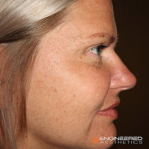 Before and After Las Vegas rhinoplasty