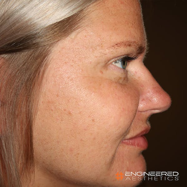 Rhinoplasty Gallery - Patient 4545370 - Image 3