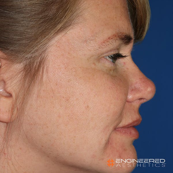 Rhinoplasty Gallery - Patient 4545370 - Image 4