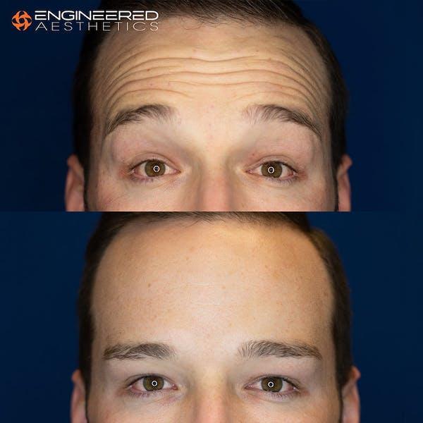 Botox Gallery - Patient 4545392 - Image 1