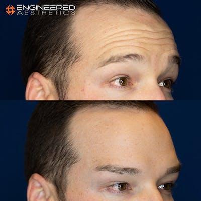 Botox Gallery - Patient 4545392 - Image 2