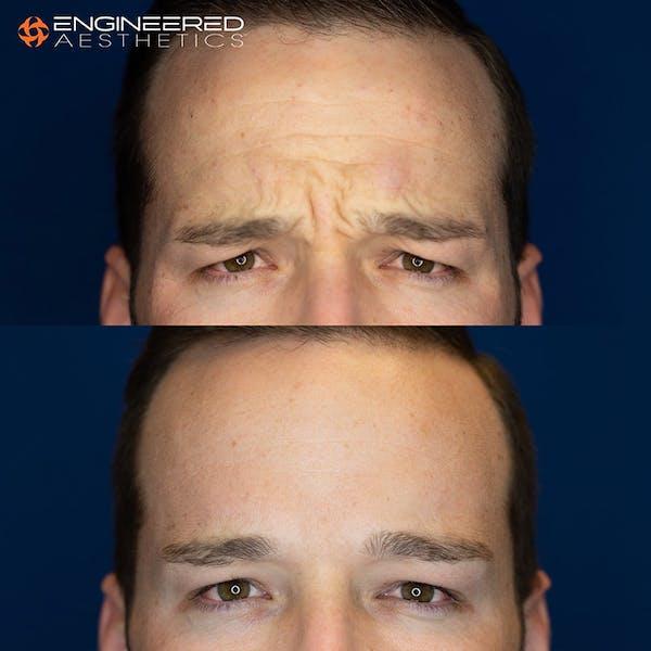 Botox Gallery - Patient 4545392 - Image 3