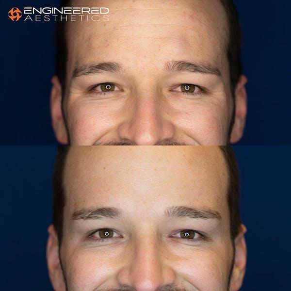 Botox Gallery - Patient 4545392 - Image 5