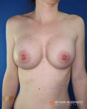Before and AFter Breast Augmentation in Las Vegas