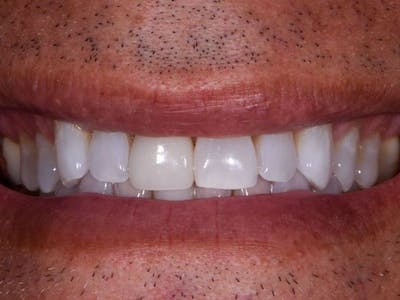 Full Mouth Reconstruction Gallery - Patient 3013897 - Image 1