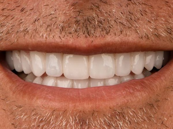 Full Mouth Reconstruction Gallery - Patient 3013897 - Image 2