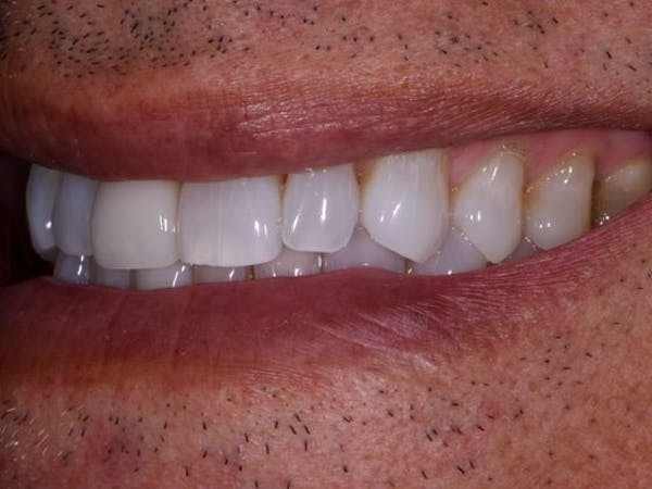 Full Mouth Reconstruction Gallery - Patient 3013897 - Image 3