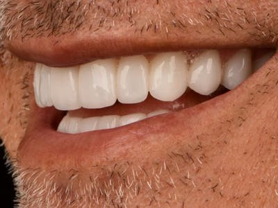 Full Mouth Reconstruction Gallery - Patient 3013897 - Image 4