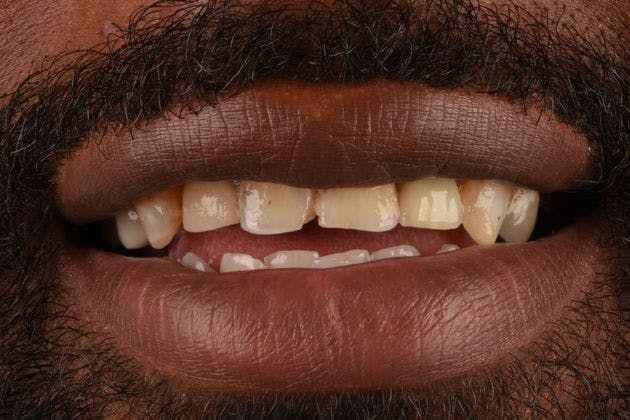 Full Mouth Reconstruction Gallery - Patient 3013898 - Image 1