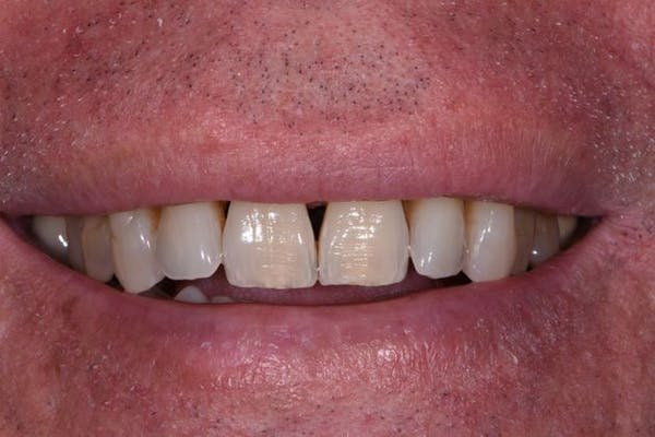 Full Mouth Reconstruction Gallery - Patient 3013900 - Image 1