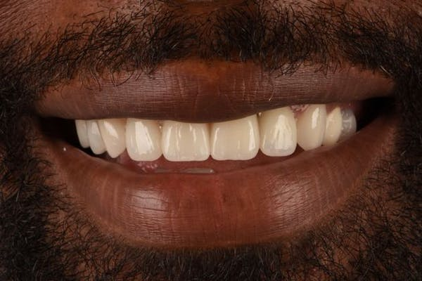 Full Mouth Reconstruction Gallery - Patient 3013898 - Image 2