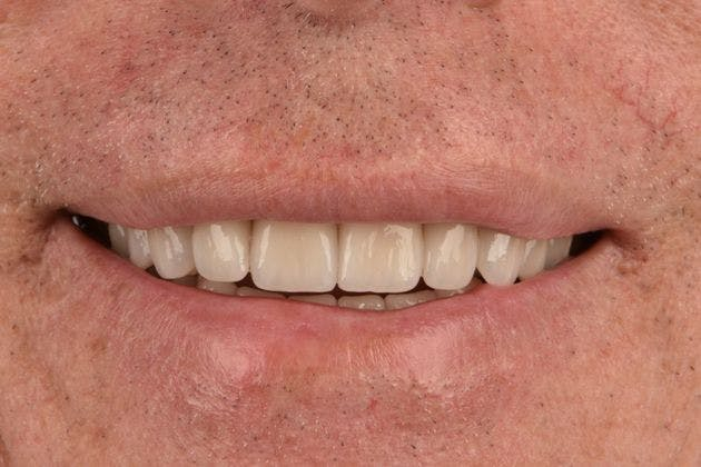 Full Mouth Reconstruction Gallery - Patient 3013900 - Image 2