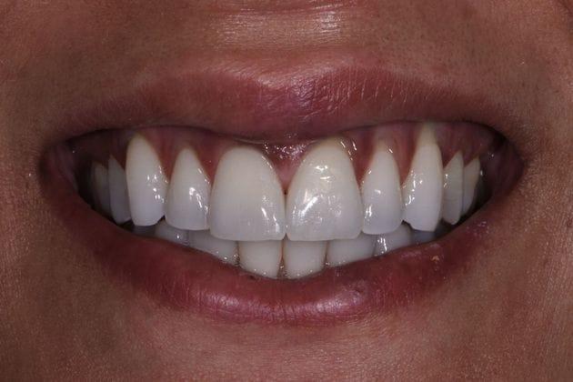 Before & After Dental Bonding