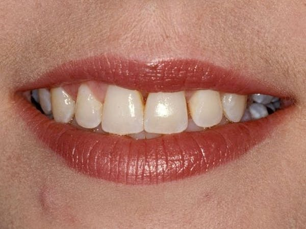 Porcelain Crowns Gallery - Patient 3015207 - Image 1