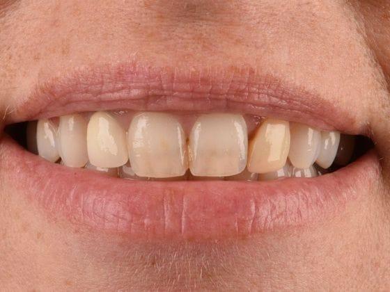 Before & After Dental Implants