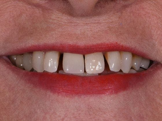Dental Implants Gallery - Patient 3015356 - Image 1