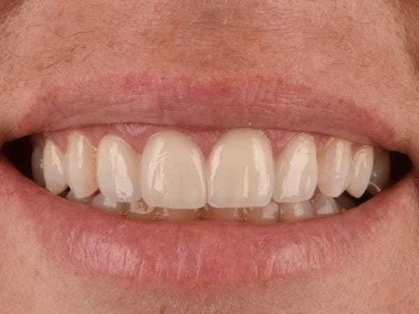 Dental Implants Gallery - Patient 3015355 - Image 2