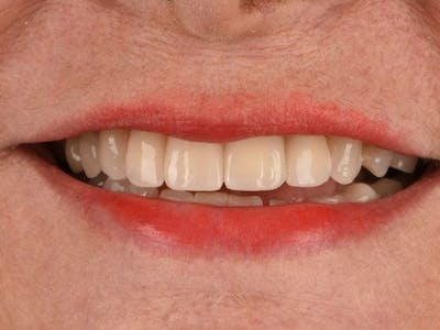 Dental Implants Gallery - Patient 3015356 - Image 2