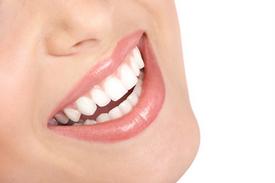 Charleston Dental Bonding vs. Porcelain Veneers