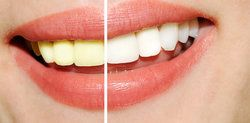 Charleston Teeth Whitening Side Effects