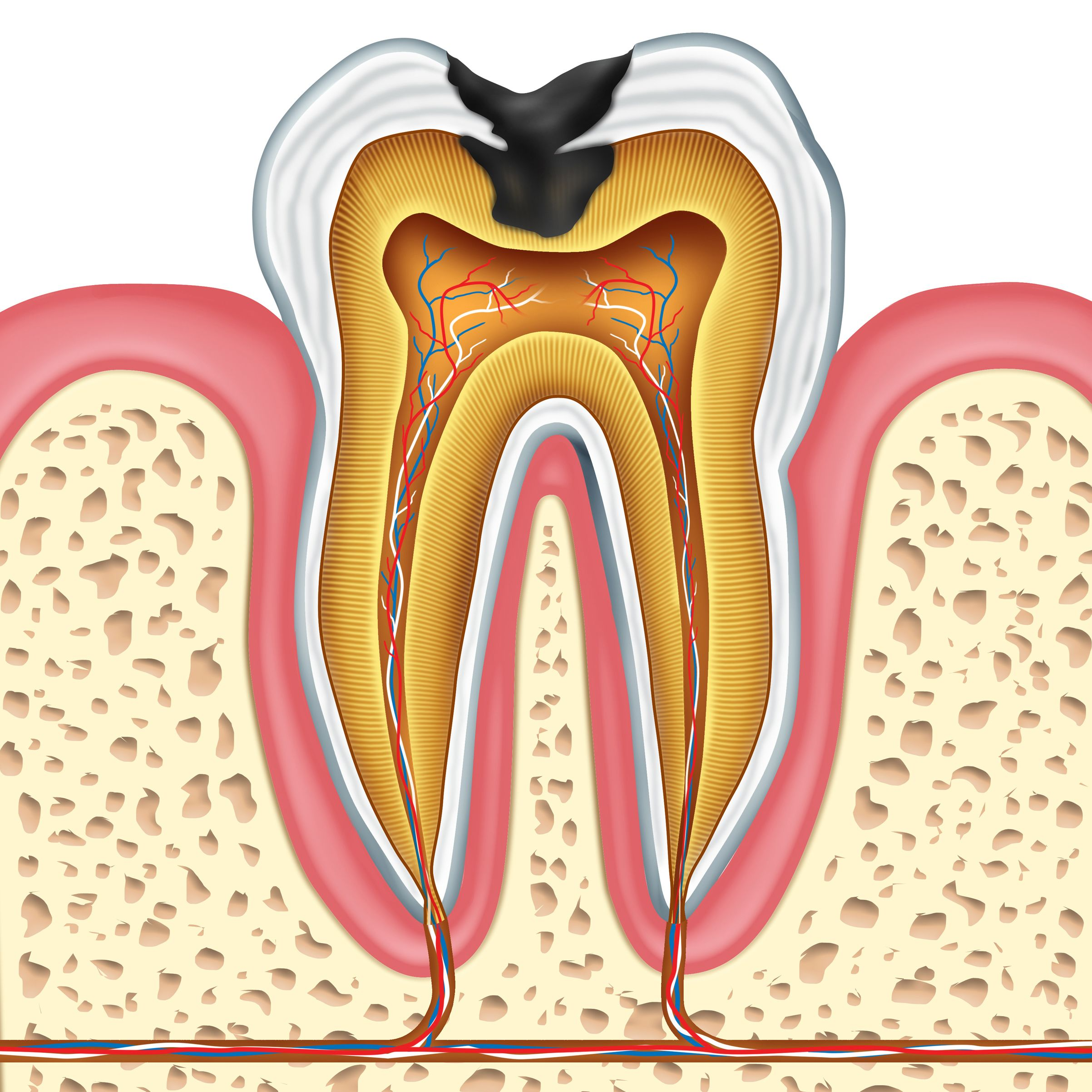 How cavities can affect a tooth's structure