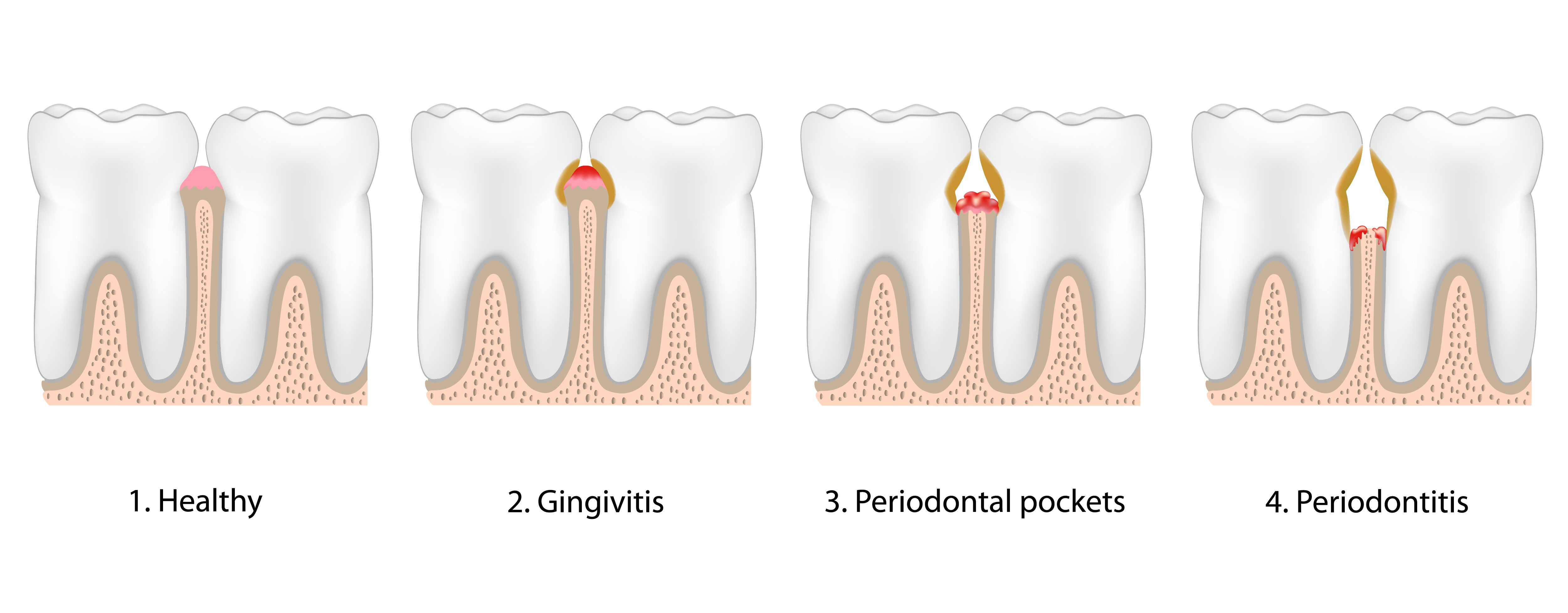 Illustrated chart showing the stages of gum disease