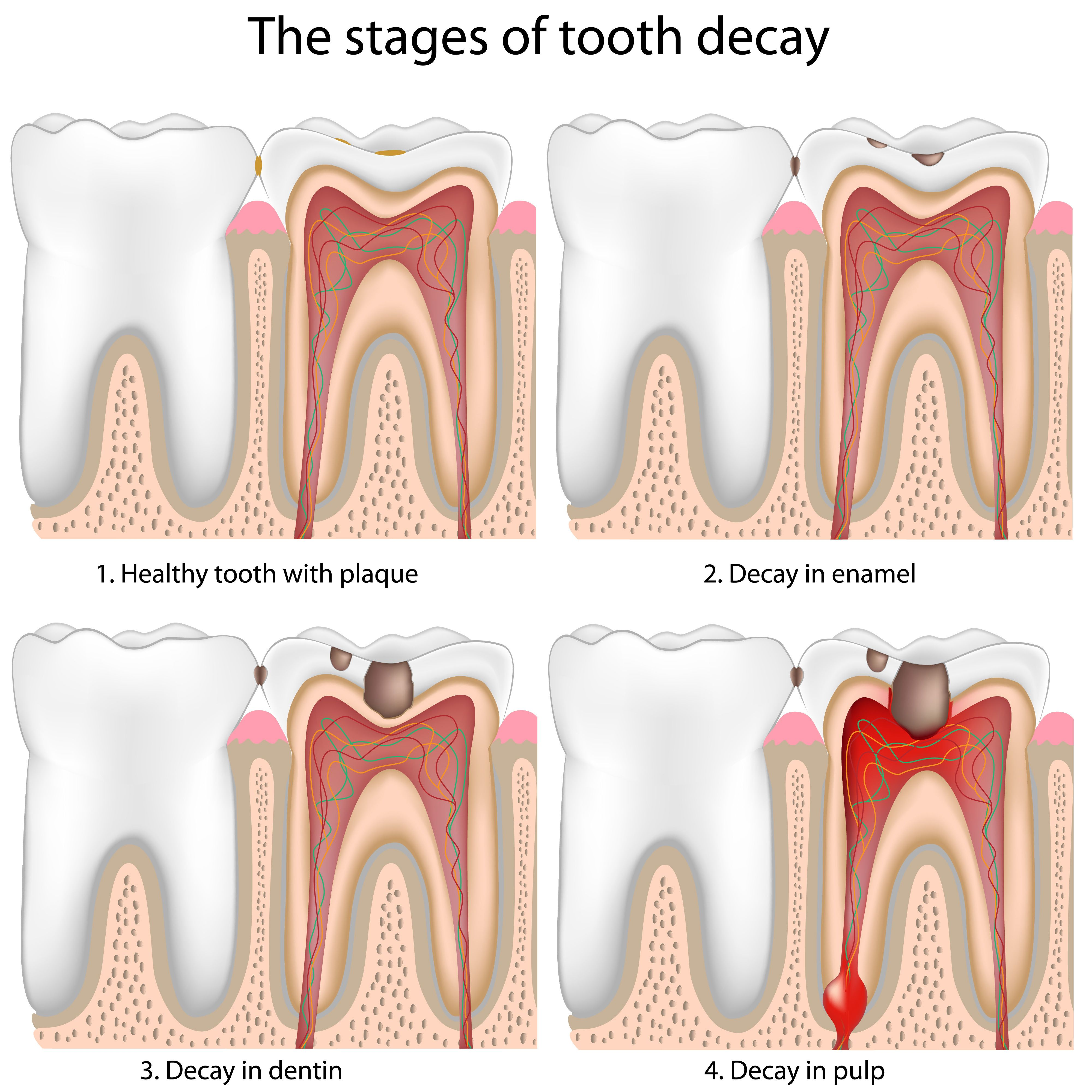The stages of tooth decay progression