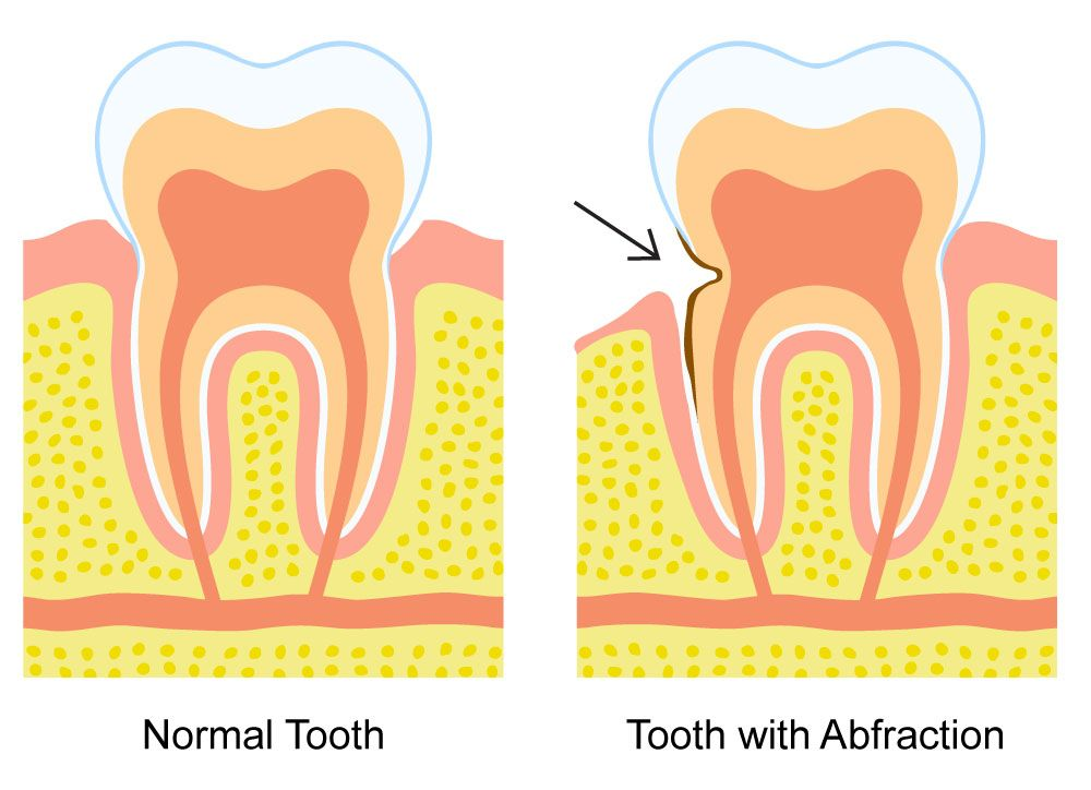 Dental Abfractions
