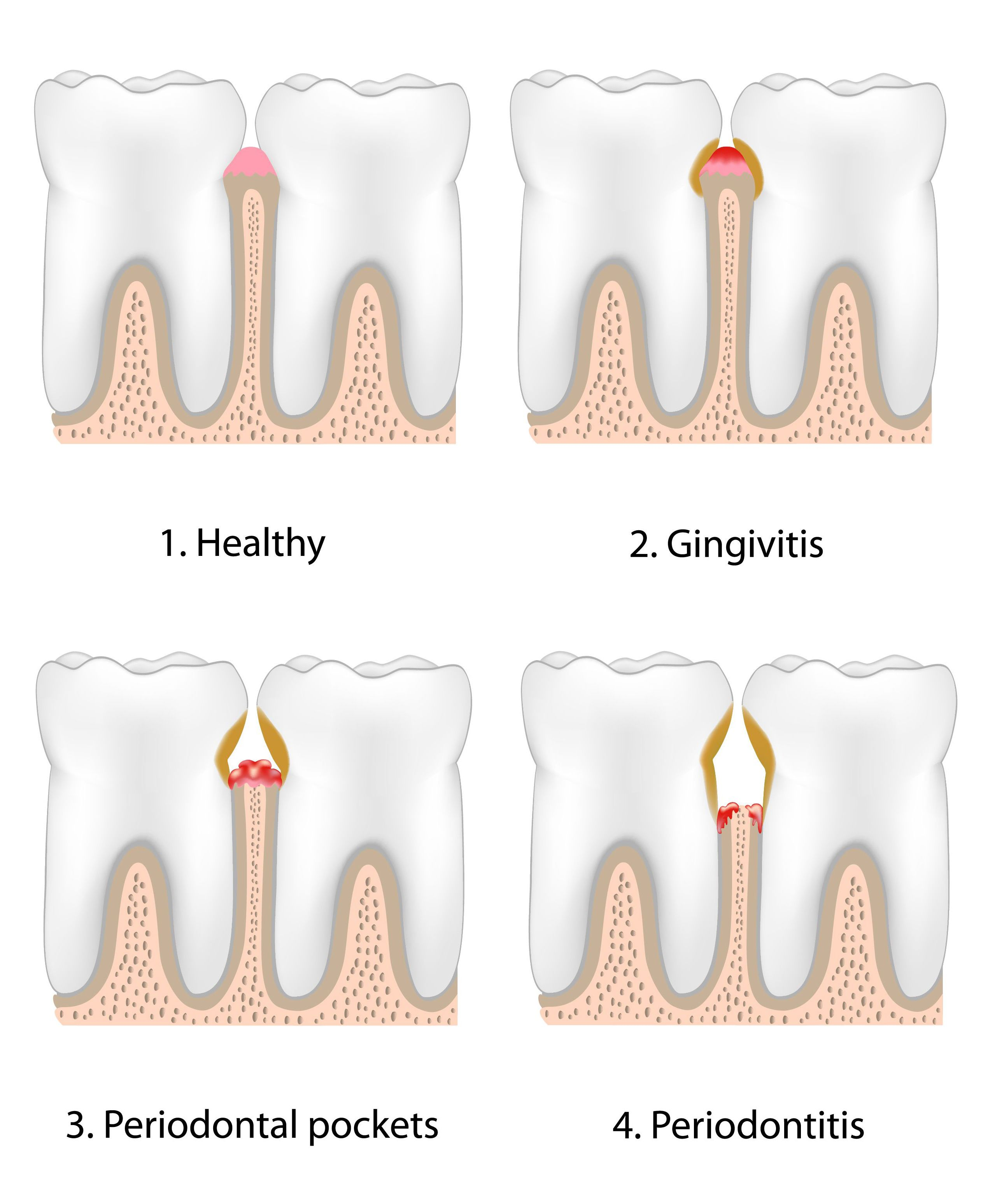 Four-panel illustration of the stages of gum disease