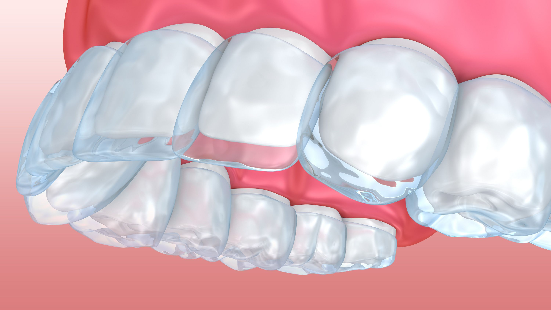 Invisalign aligner trays on the upper teeth