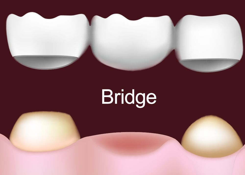 Illustration of a dental bridge