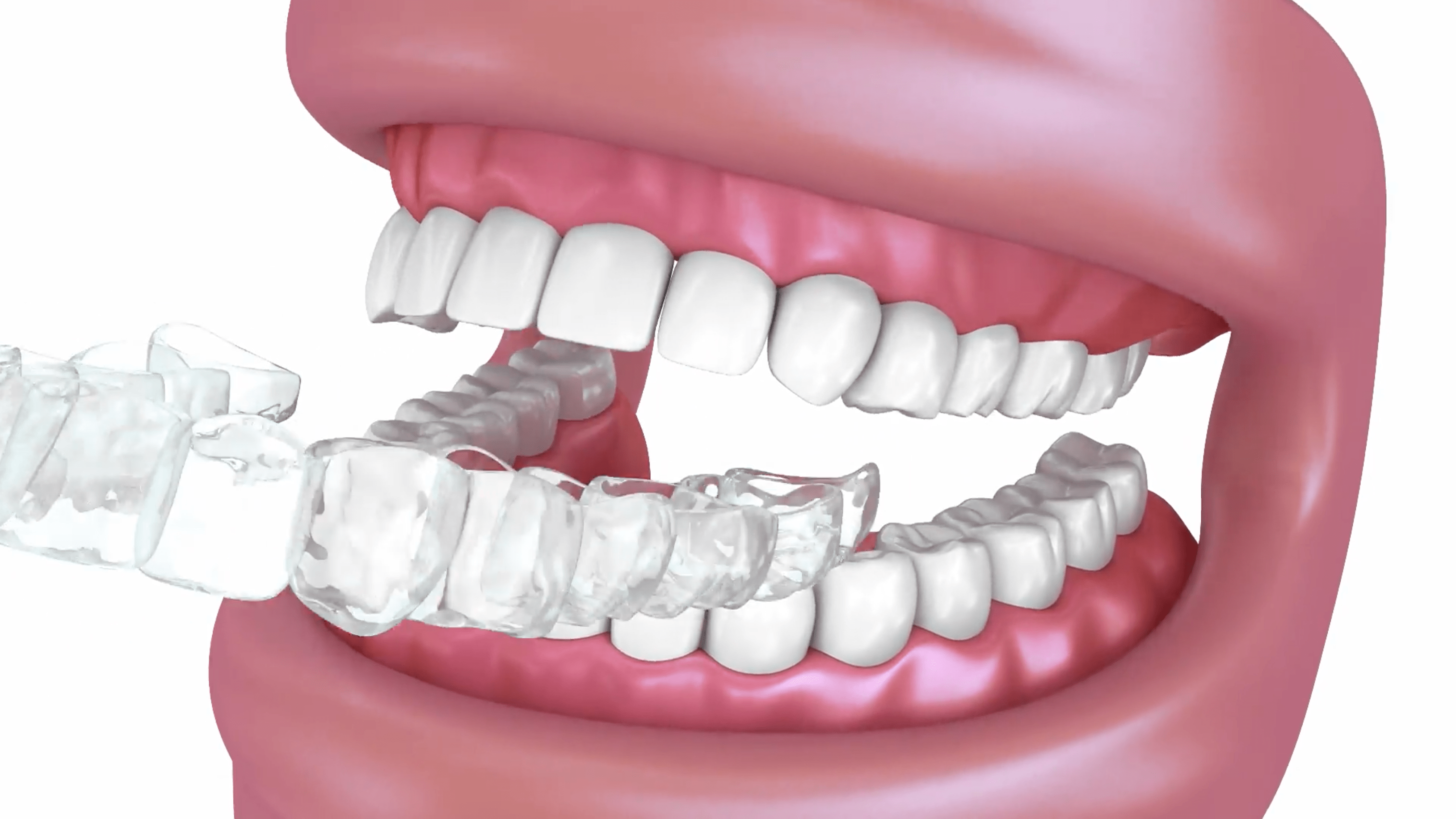 Retainers | Charleston Center For Cosmetic Dentistry