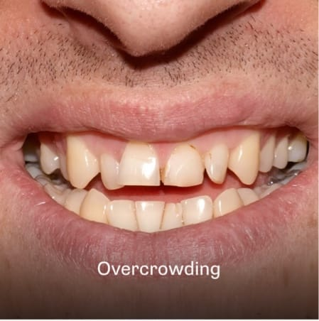 Example of teeth being overcrowded in Charleston, SC