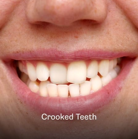 Example of crooked teeth in Charleston, SC