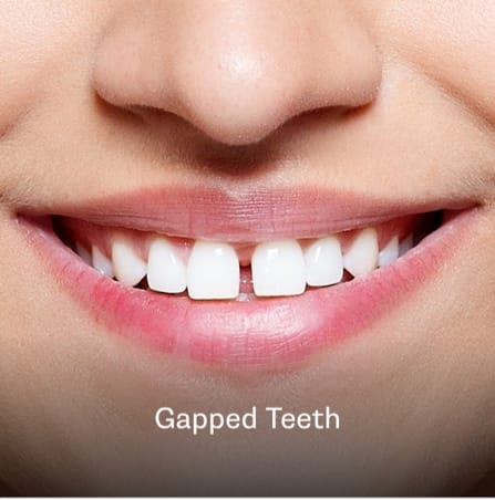 Example of a gap in teeth in Charleston, SC